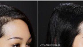 Před a po aplikaci Toppiku